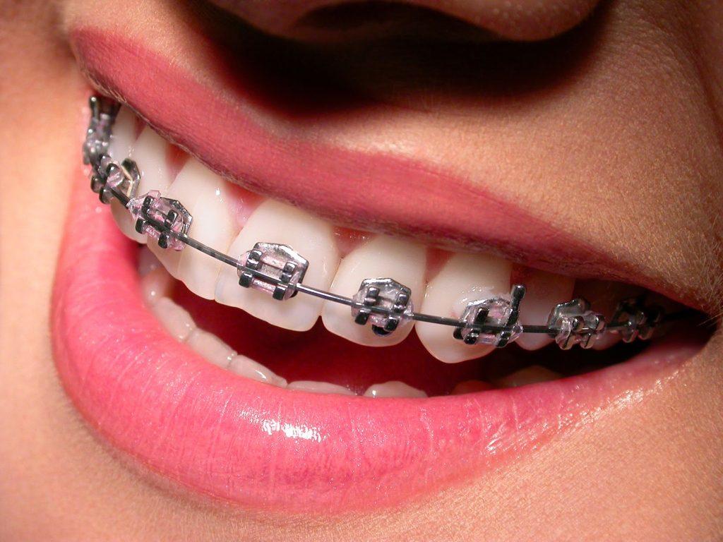 brackets metálicos en clínica dental chile