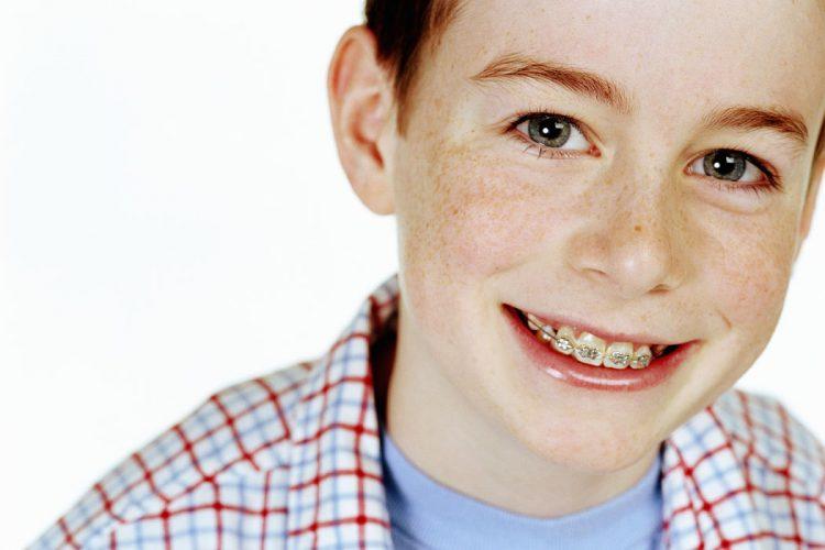 ortodoncia infantil en clínica dental chile